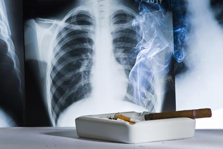 Illustration - Le tabagisme est bien un facteur de