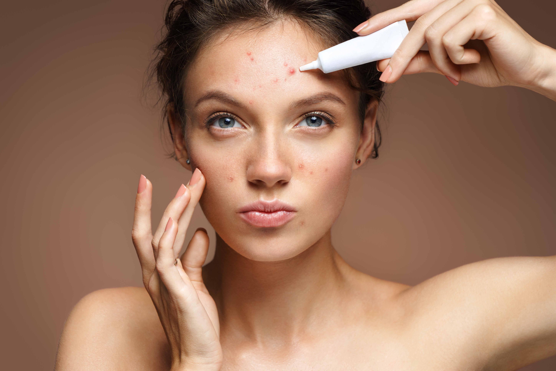Les médicaments de l'acné